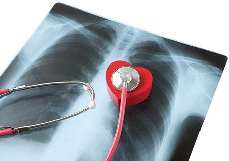 Budakalászon tüdőszűrést tartanak